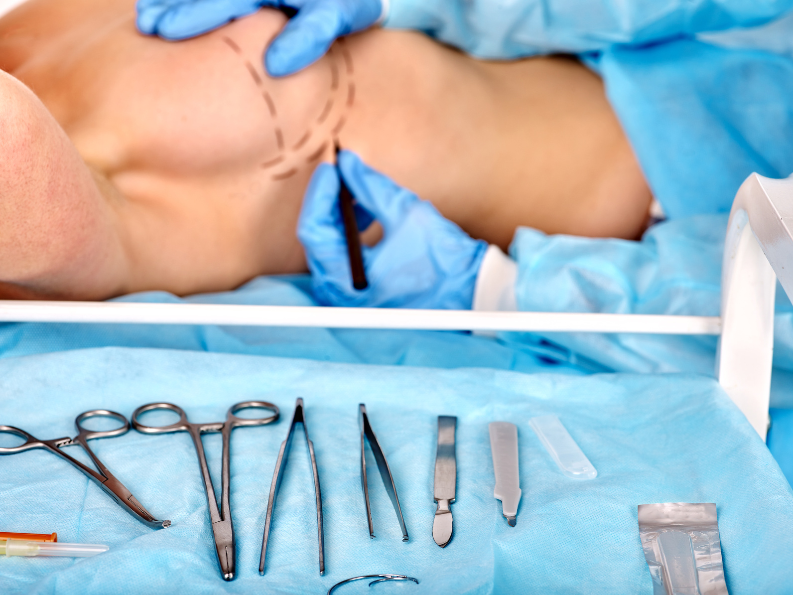 Breast cancer surgery. Doctor makes dotted line on female body. Surgical Instruments on foreground.