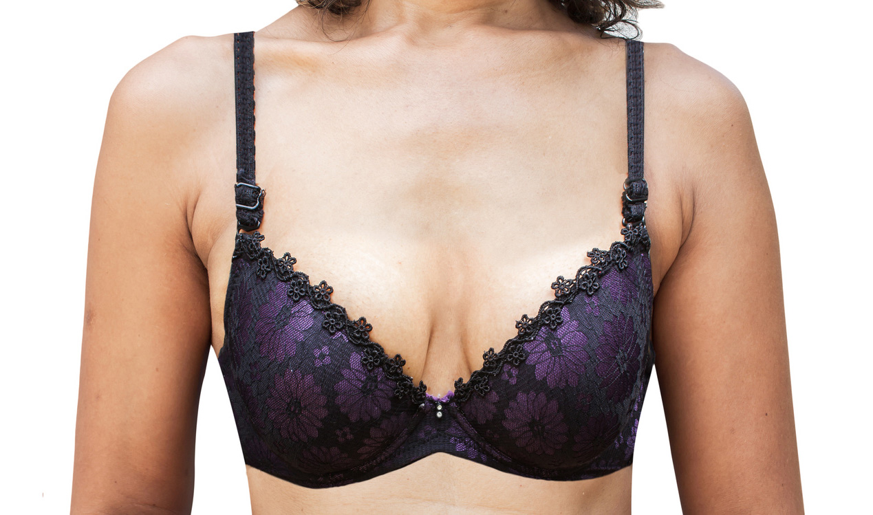 before and after between women's Breast Surgery